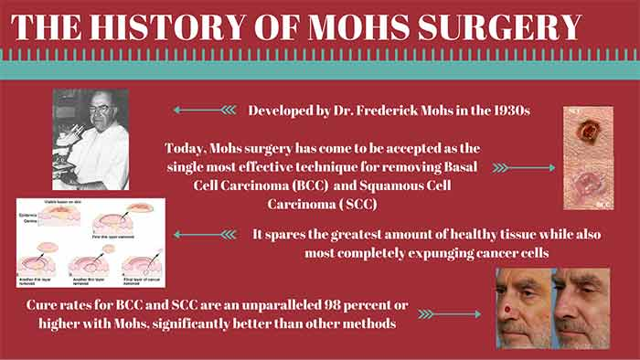 History of Mohs Surgery
