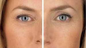 Juvederm Before/After Gallery