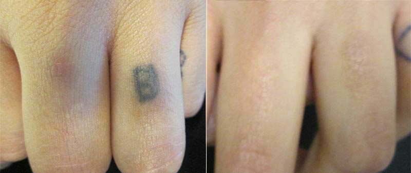 Laser Tattoo Removal on Finger Before and After