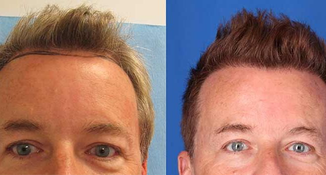 Hair Restoration Before and After