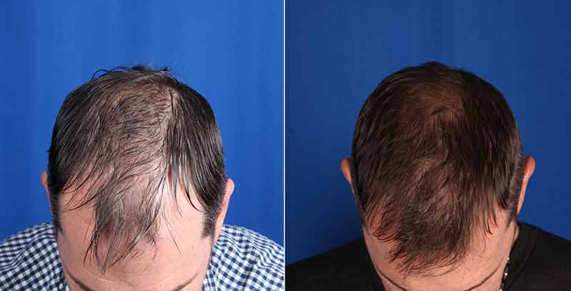 Before and After Hair Restoration