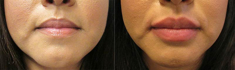 Restylane for Lips