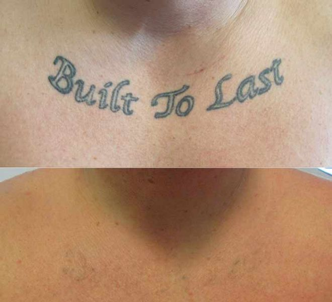 Tattoo Removal on Chest Before and After