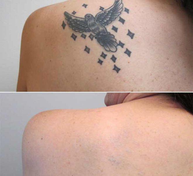 Tattoo Removal on Back Before and After