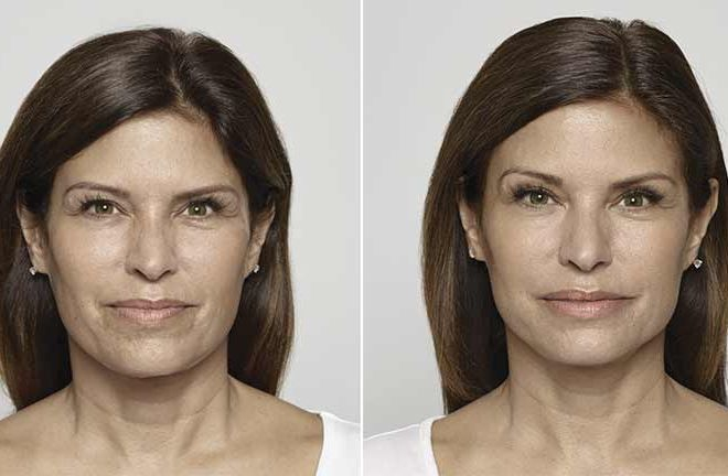 Before and after Restylane