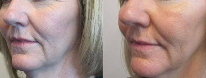 Fractional CO2 Before and After