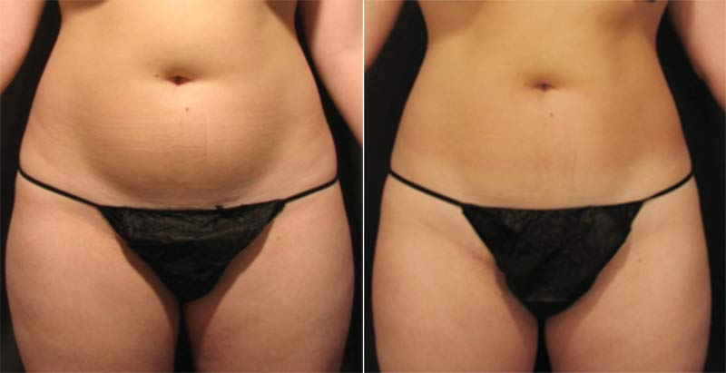 Velashape III Liposuction Before and After