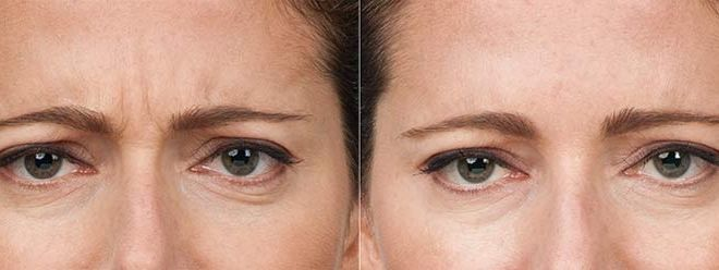 Botox for 11's (between the eyes)