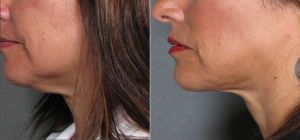 Chin Liposuction Before and After