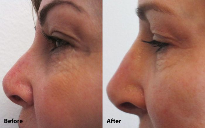 Restylane Lyft for Nose