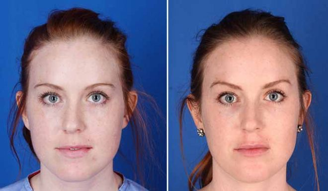 Excel V for the face before and after
