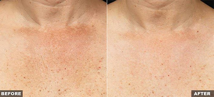 Fraxel for Decolletage