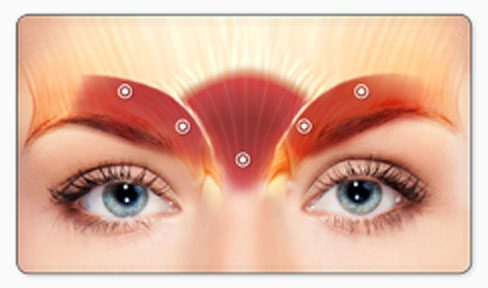 Dr Jochen uses Dysport® to treat brow lines