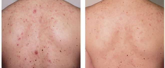Back Acne Scars Treatment, Before & After