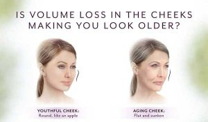 Is Volume loss in the cheeks making you look older/ Try Voluma