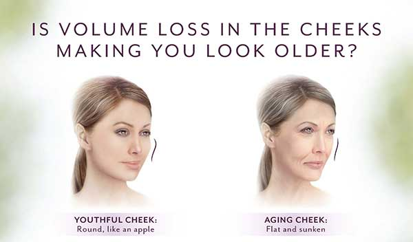 As you age, it's not just about lines and wrinkles. Your cheeks also lose volume and the skin may sag. That's why a more youthful profile starts with the apples of your cheeks.