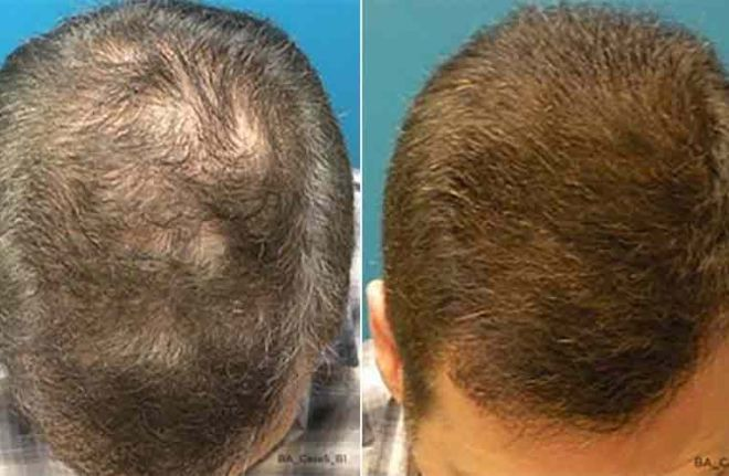Capillus Before and After