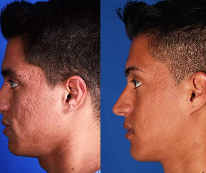 Sublative Laser for acne scarring