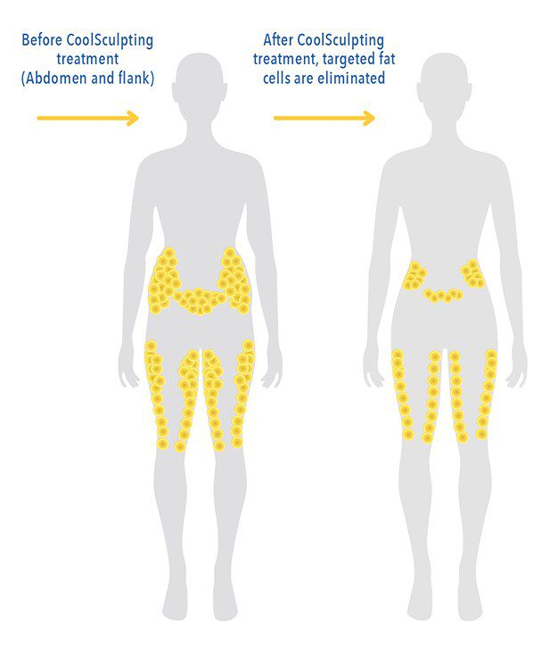 CoolSculpting Fat Cell Removal Diagram