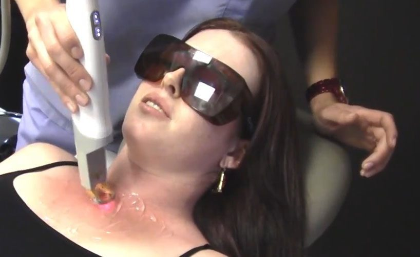 Reduce the reds with Contour Dermatology's Excel-V Laser Treatment