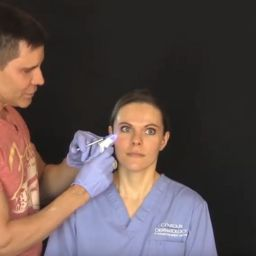 In this video Dr Timothy Jochen demonstrates how easy it is to reduce Crow's feet with Botox injections. Crow's feet are those little wrinkles we get near the corner of our eyes. They make us look older than we actually are.