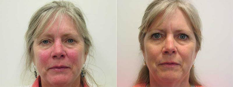 Excel-V and Chemical Peel Before and After