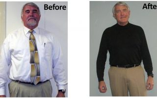 Mike, Medi-Weightloss Patient