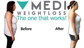 Paige, Medi-Weightloss Before & After