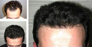 NeoGraft before and after photos