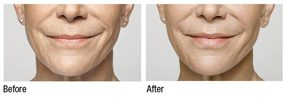 Restylane Silk is the newest facial filler approved for lipstick lines