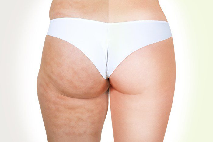 Cellulite, Before & After Treatment