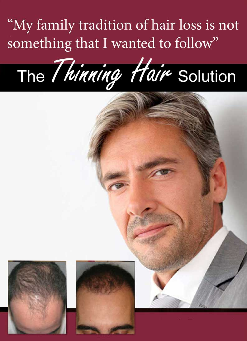 NeoGraft, the game changer in hair transplant