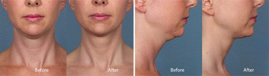 Kybella Before and After Photos at Contour Dermatology