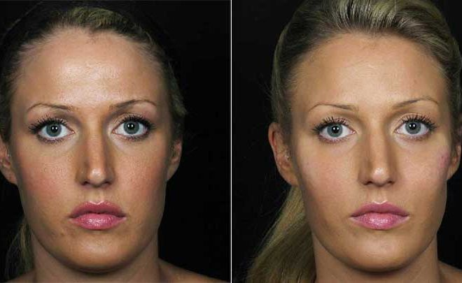 Voluma Before and After Cheeks