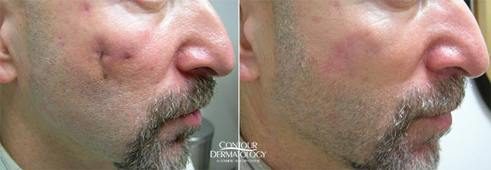 Male scar revision on face