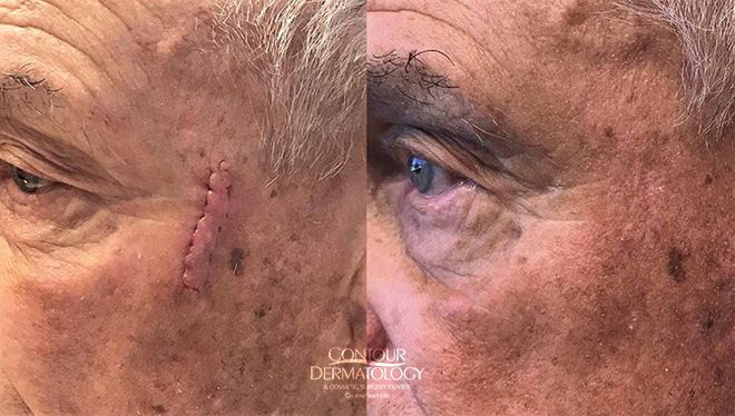 Male patient, scar revision on face after Mohs Surgery
