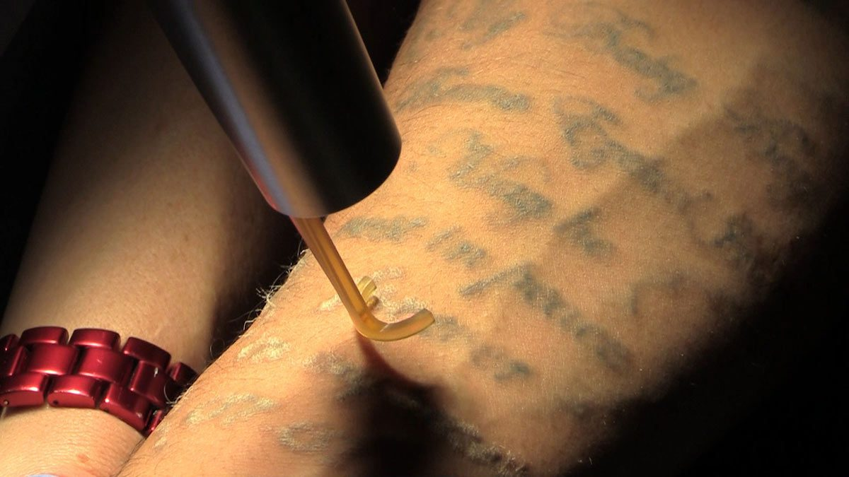 PicoWay Tattoo Removal Laser action
