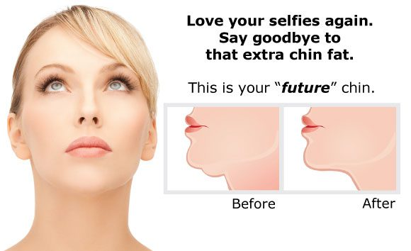 Love your selfies again! Try Kybella!