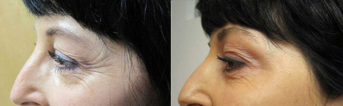Botox for crow's feet before and after