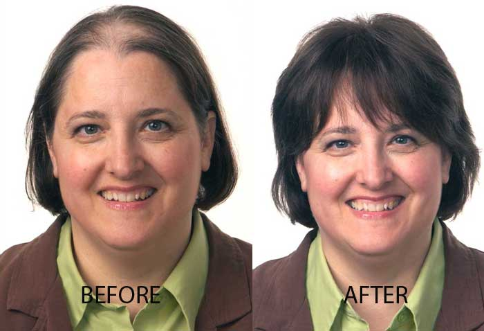 female-before-after