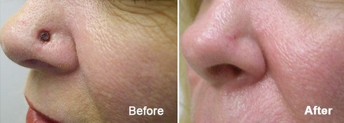 Before and after photo of an actual Contour Dermatology Mohs Surgery patient