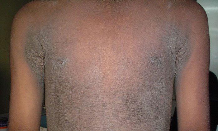Familial Acanthosis Nigricans