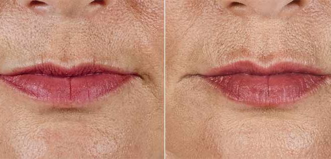 Volbella before and after lips