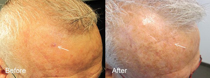 Mohs Skin Cancer Surgery Before and After Photo