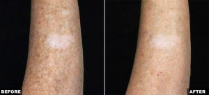 Fraxel Laser for Body Pigmentation