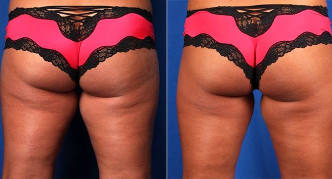 CoolSculpting Inner-Thighs