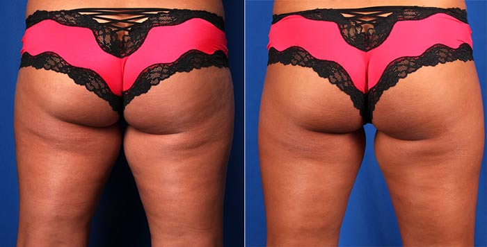 CoolSculpting - Inner Thighs