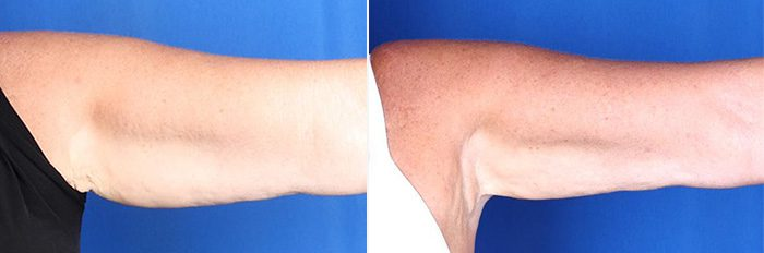 CoolSculpting - Arms