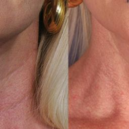 Neck filler before and after