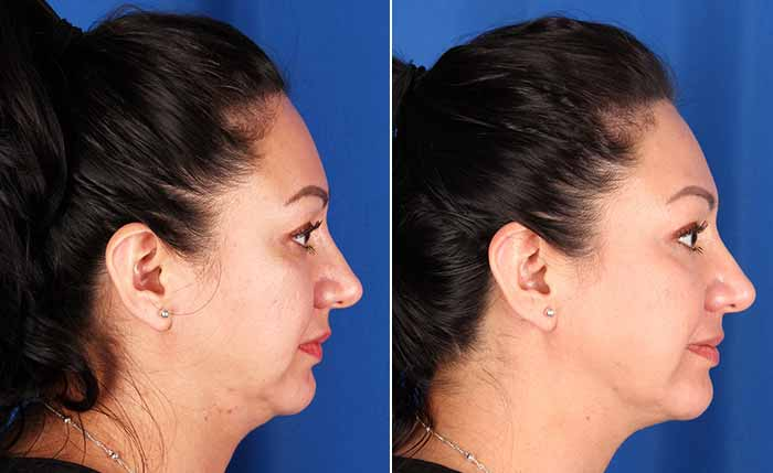 Profound before and after results for the face and neck